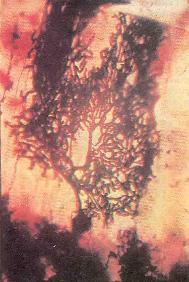 В результате химической обработки этот крупный нейрон Пуркинъе полностью окрасился серебром, чем и объясняется его темное изображение на фоне окружающих клеток. Отчетливо видна очень сложная система дендритов, отходящих от тела клетки