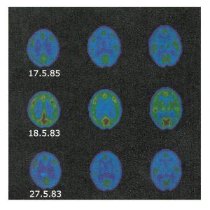 В каждом ряду предста¬влены три различных «среза» мозга. Средний ряд - гипома¬ниакальная фаза, вверху и внизу — две различные стадии депрессии