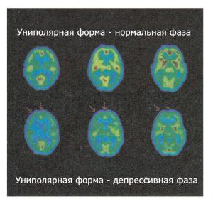 Верхний ряд - больной находится в нормальном хорошем настроении, нижний ряд - в депрессивном состоя-нии. В фазе депрессии наиболее сильно снижается метаболическая активность лобной доли и передней поясной извилины
