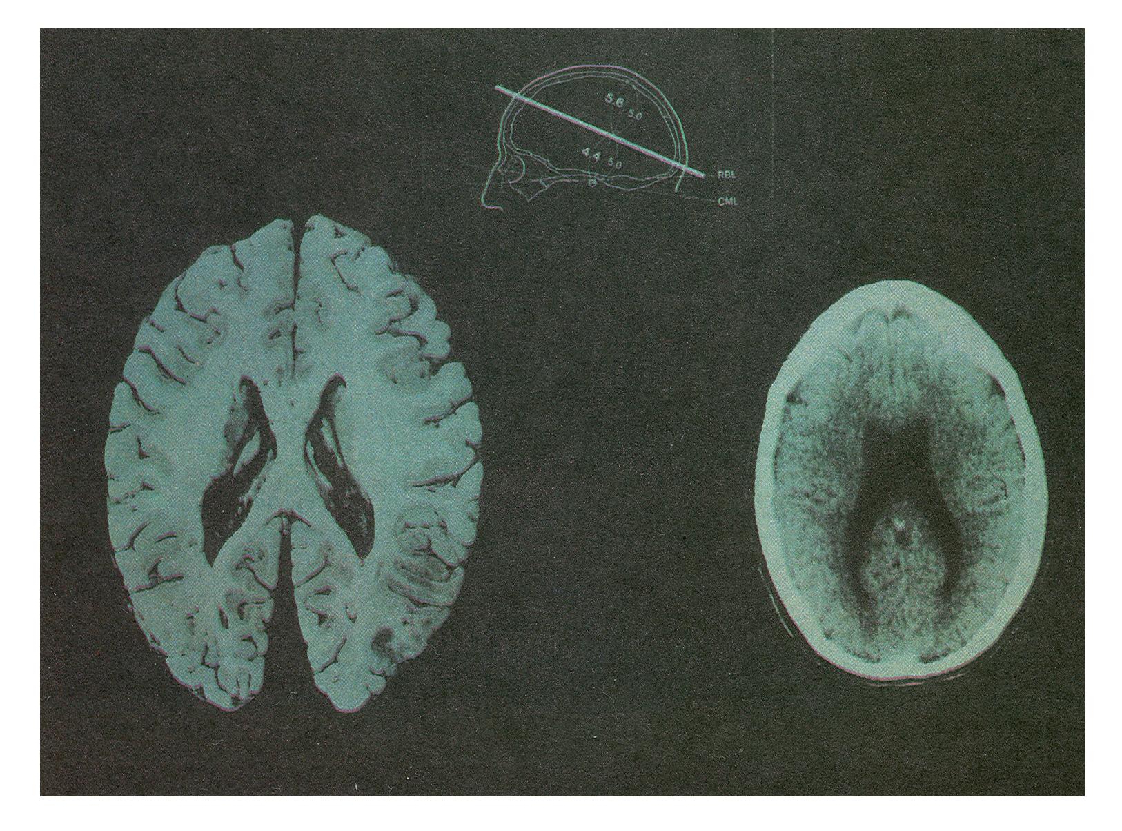 Основные типы шизофрении